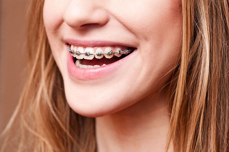 Orthodontics in Forth Worth