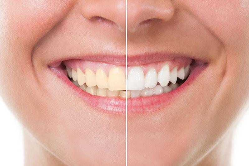 Teeth Whitening in Forth Worth